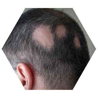 r nehmat ramadan skin clinic treatment-hair-treatments-alopecia-areata