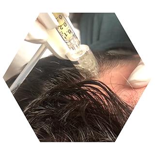 r nehmat ramadan skin clinic treatment-hair-treatments-prp