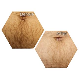 r nehmat ramadan skin clinic treatment-lasers-stretch-marks