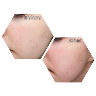 r nehmat ramadan skin clinic treatment-medical-dermatology-acne-scars