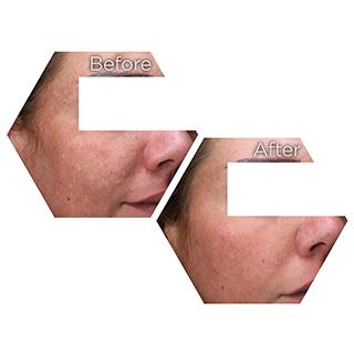 r nehmat ramadan skin clinic treatment-medical-dermatology-melasma