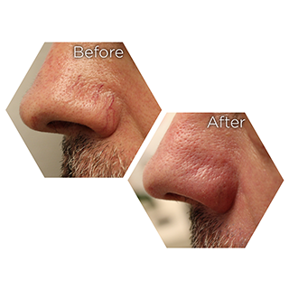 r nehmat ramadan skin clinic treatment-medical-dermatology-rosacea